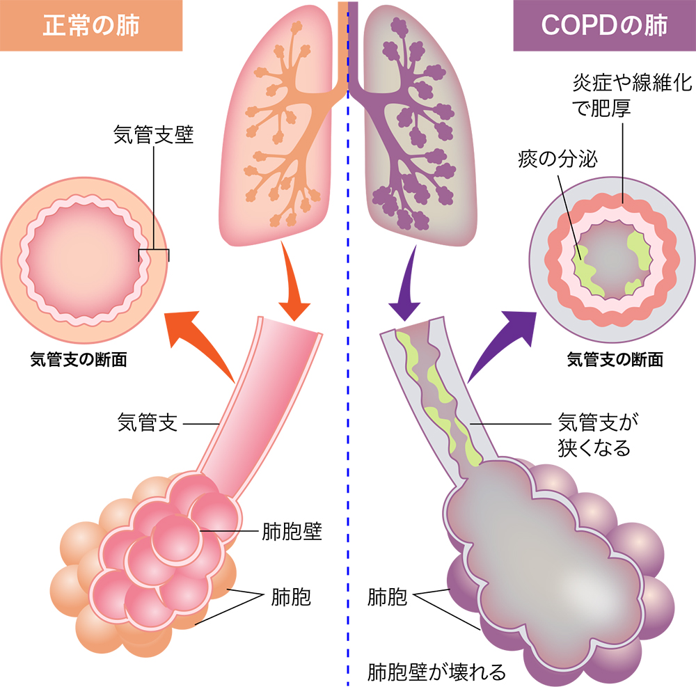 慢性 肺気腫