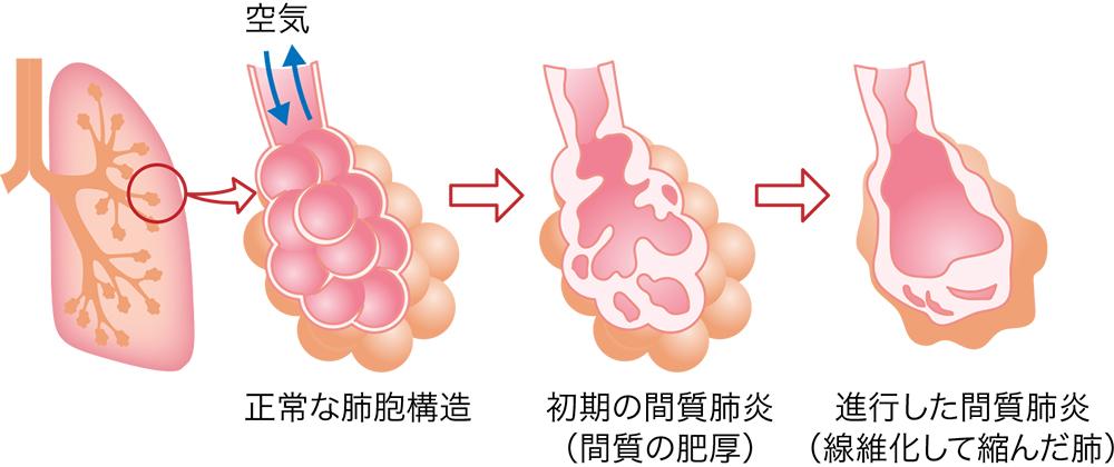 肺炎 乾湿 性 間質性肺炎!余命は診断時の重症度や急性増悪で決まり原因が治る基準
